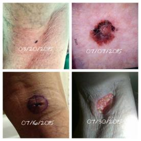 Melanoma timeline. Who knows how long I had it before it was discovered in March 2015?