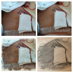 Catheter. Stitches over lymph node removal. Bandage holding drain in place.