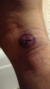 The original melanoma site after it was punched out and stitched.